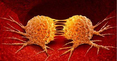 Znanstvenici zaustavili širenje raka